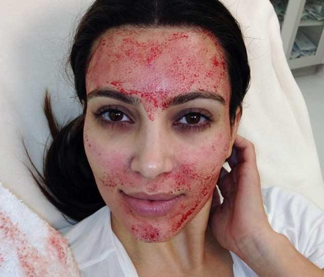 vampire-facial-types-of-skin-treatment-popular-celebrity